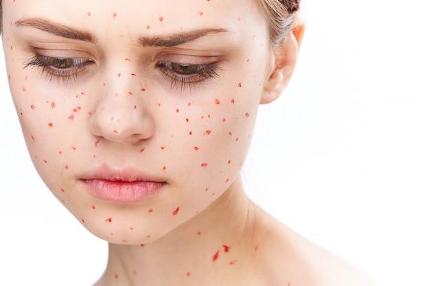 Éruption cutanée et inflammation du visage, de l'acné et de la varicelle chez la femme
