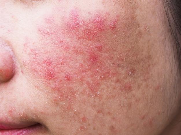 Éruption cutanée rouge sur le visage de la jeune femme, démangeaisons et problèmes de peau allergiques, dermatite