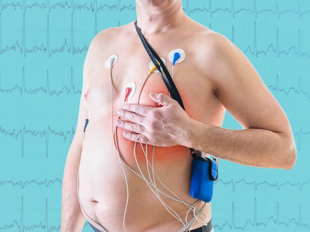 L'étude de la fréquence cardiaque des hommes à l'aide de l'observation quotidienne. la méthode du licol. méthode de diagnostic des maladies cardiaques.