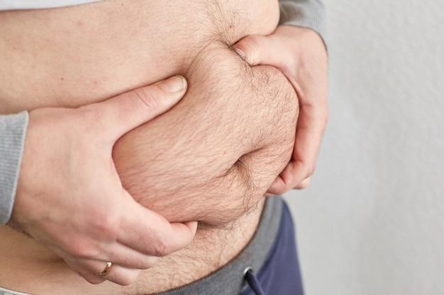 Excès de graisse sur l'abdomen masculin, mauvaise forme physique en raison d'une mauvaise nutrition.