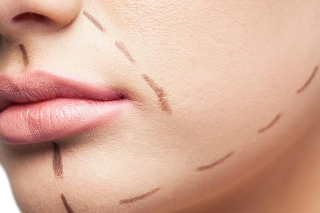 Extreme close up sur le patient magnifique avec des lignes pointillées sur le visage