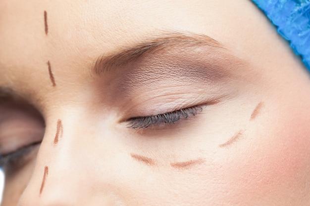 Extrême gros plan sur un patient détendu avec des lignes pointillées sur le visage