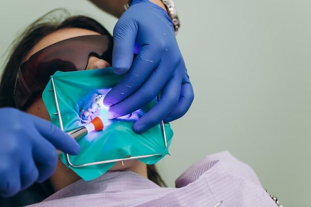 Facettes dentaires. couronnes avant en céramique