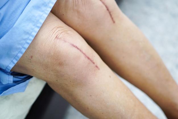 Femme âgée asiatique âgée patiente montre ses cicatrices remplacement total du genou chirurgical.