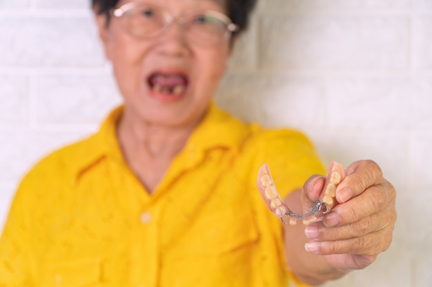 Femme âgée asiatique souriante avec quelques dents cassées et tenant des prothèses dentaires à la main.