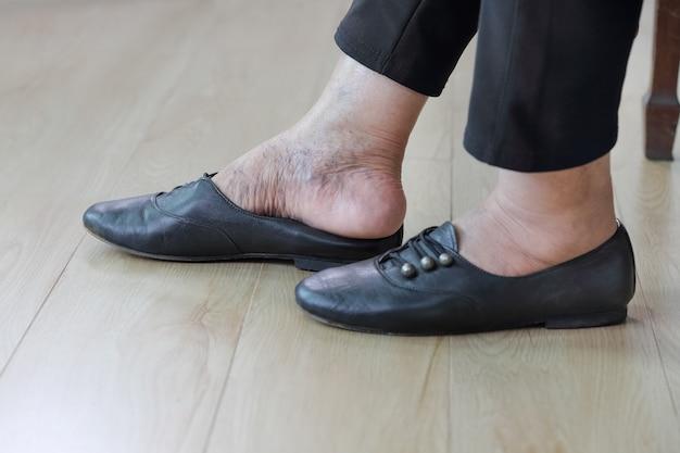 Femme âgée, mettre, chaussures