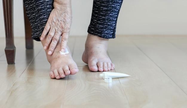Femme âgée, mettre, crème, sur, enflé, pieds