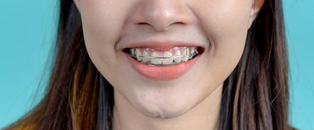 Femme asiatique souriante portant un appareil de rétention orthodontique sur fond d'écran bleu. soins dentaires et dents saines.