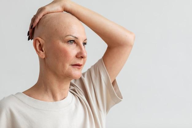 Femme atteinte d'un cancer de la peau avec espace de copie
