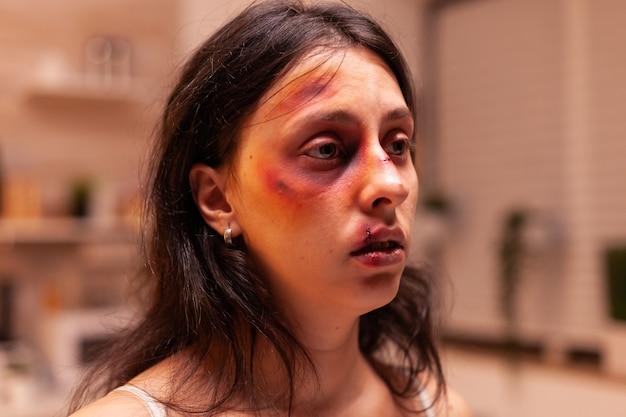 Femme au visage meurtri après avoir été maltraitée et agressée lors de violences domestiques