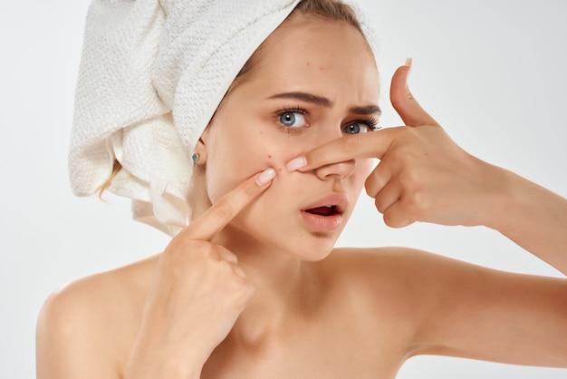 Une femme aux épaules nues avec une serviette sur la tête fait sortir les boutons et l'hygiène dermatologique