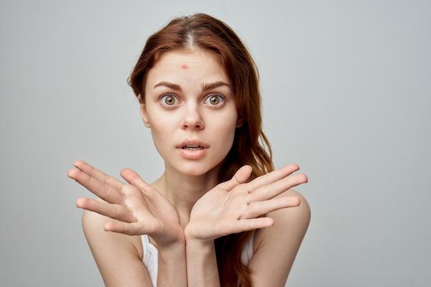 Femme ayant des problèmes d'acné
