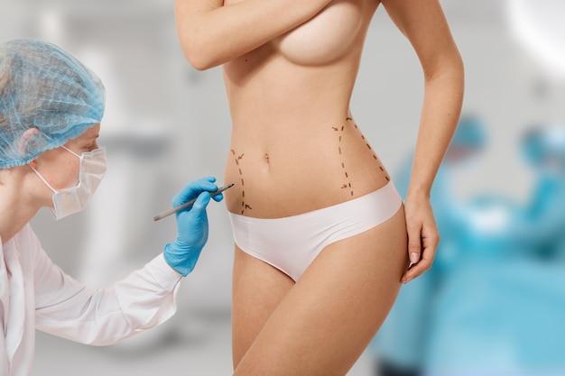 Femme balisée pour la chirurgie esthétique
