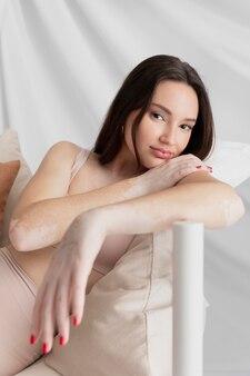 Femme brune avec le vitiligo posant