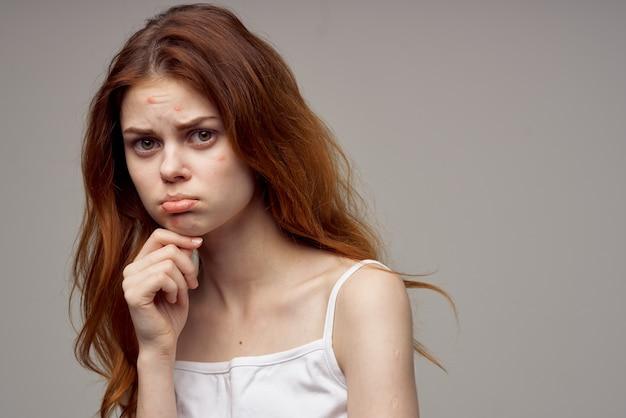 Femme, à, cheveux lâche, acné, sur, elle, figure, acné, gestes