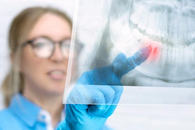 Une femme dentiste regarde une image radiographique panoramique de la mâchoire d'un patient et pointe du doigt une dent douloureuse