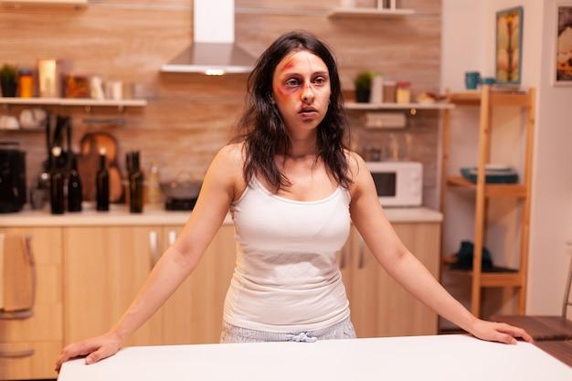 Une femme désespérée après avoir été brutalement battue et victime de violence domestique