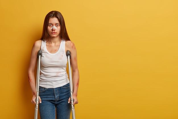 Femme avec des ecchymoses et le nez cassé, étant gravement blessée