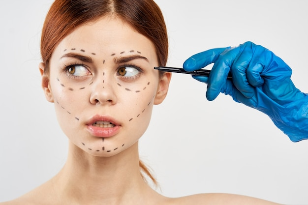 Une femme en gants bleus tient une seringue dans ses mains et des points d'injection de botox