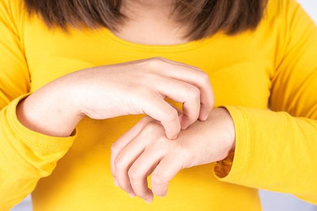 Femme grattant sa main qui démange.