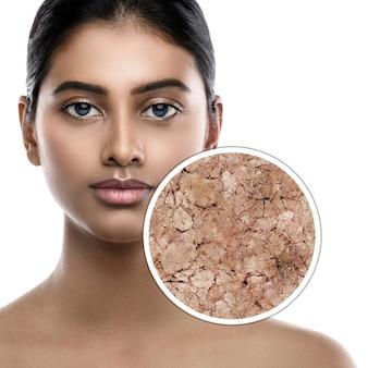 Femme indienne et échantillon agrandi de sa peau. concept de différents problèmes de peau, démangeaisons et sécheresse. isolé sur blanc.