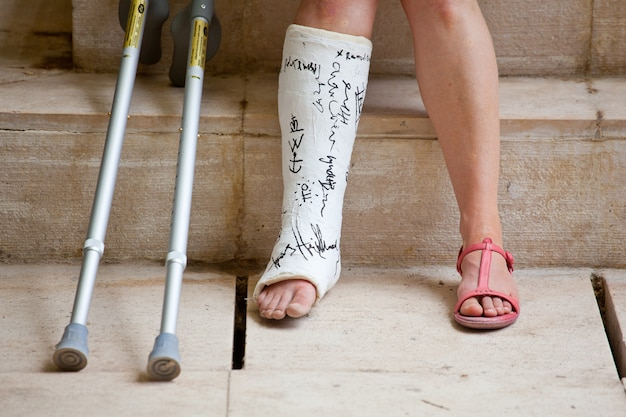 Une femme avec une jambe en plâtre et des béquilles