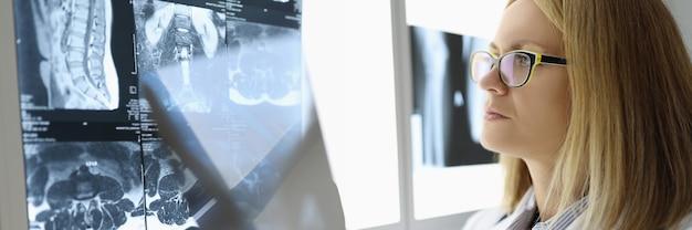 Femme médecin examine une radiographie dans un cabinet médical. concept de soins et services médicaux