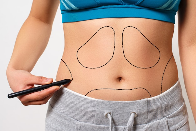 Une femme montre une ligne pointillée sur sa zone de liposuccion corporelle