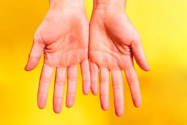 Femme montre les paumes de ses mains avec des callosités dues au travail acharné, isolé sur fond jaune.