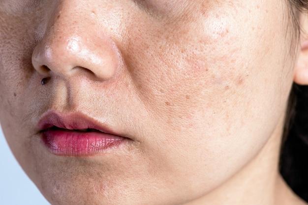 Femme à la peau problématique, aux cicatrices d'acné, aux rides et aux taches brunes.