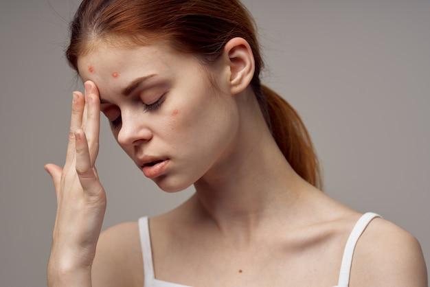 Femme, peau propre, acné, acné, problèmes de santé, dermatologie