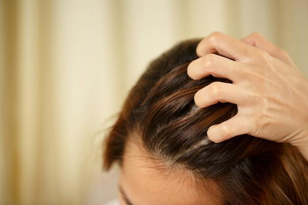Une femme a des problèmes de cheveux et de cuir chevelu, elle a des pellicules dues à des réactions allergiques aux shampooings. et après-shampooing