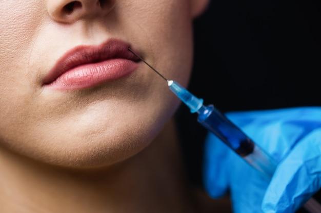 Femme, réception, injection, lèvres