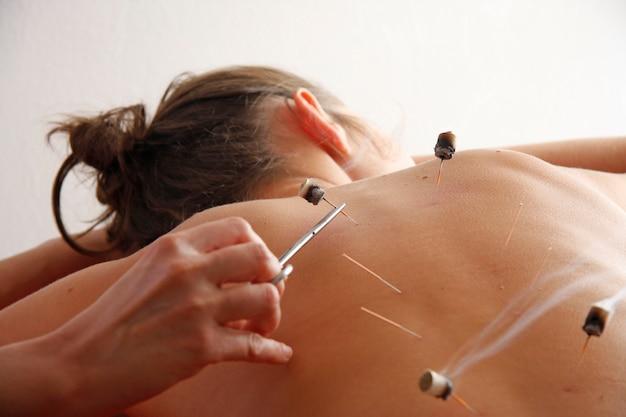 Femme recevant un traitement d'acupuncture
