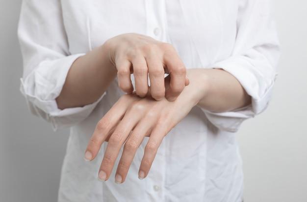 Femme se gratte la main