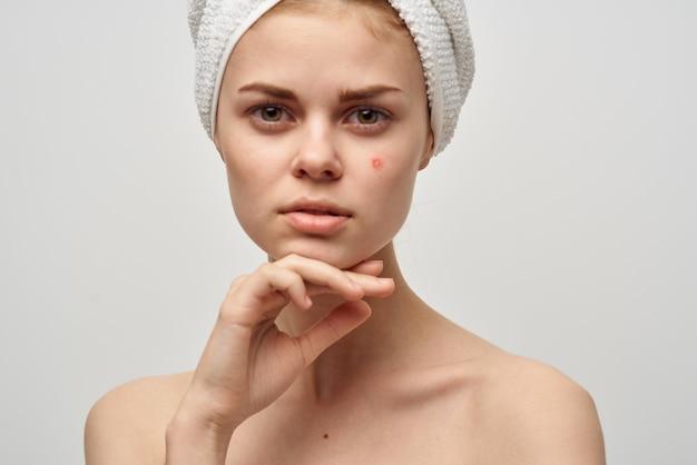 Femme avec une serviette sur la tête épaules nues traitements spa de l'acné peau claire