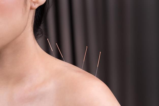 Femme subissant un traitement d'acupuncture à l'épaule