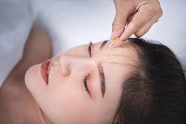 Femme subissant un traitement d'acupuncture sur la tête