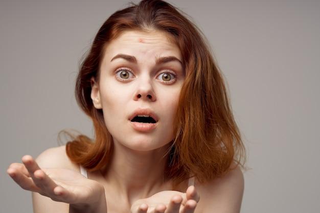 Femme surprise avec l'acné sur son visage problèmes de santé acné