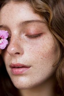 Femme de taches de rousseur couvrant son œil avec une fleur