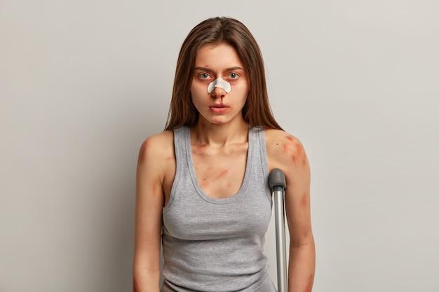 Une femme traumatisée s'est blessée au travail, a des problèmes de santé, plâtre sur le nez cassé, peau meurtrie, pose avec des béquilles, est tombée sur une surface glissante à cause de la négligence. danger de rouler