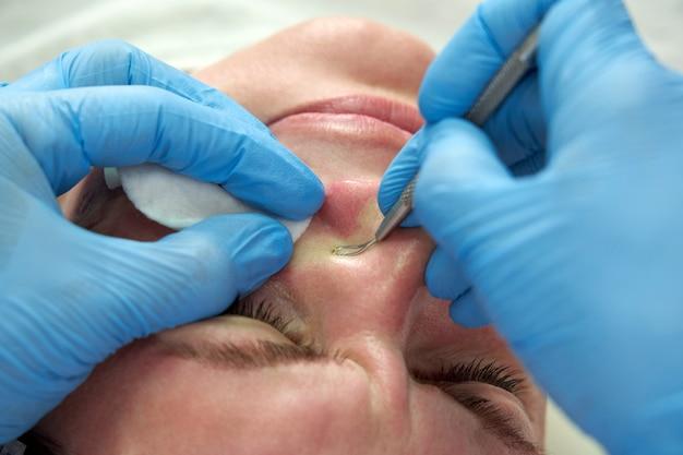 Une femme utilise un bâtonnet d'élimination de l'acné pour éliminer les boutons de points blancs sur le visage en appuyant sur les boutons gras