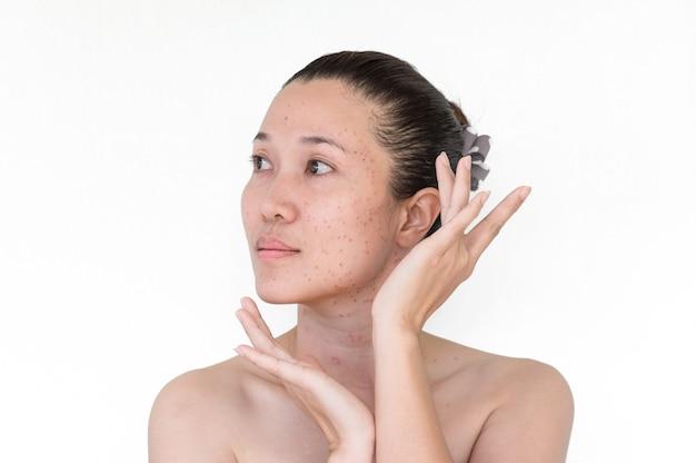 Les femmes font un laser sur le visage, le visage plein de taches rouges.