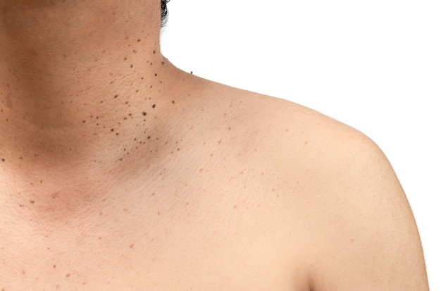 Fermé les étiquettes de la peau ou la kératose séborrhéique sur le cou