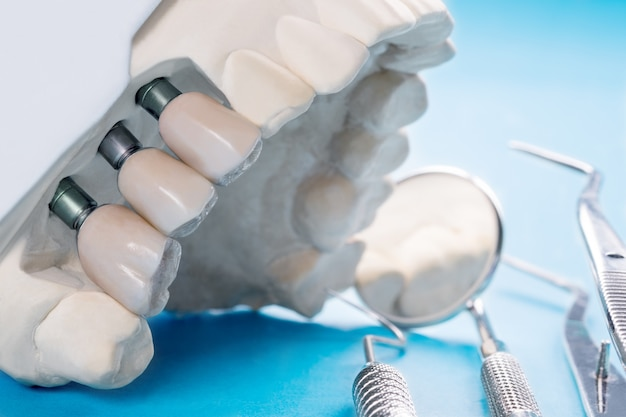 Fermer le modèle de l'implant avec le support de dent fixe pour fixer l'implant et la couronne.