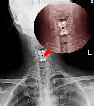 Fication de la colonne vertébrale par rayons x sur c-spine des corps c5-6 aucune luxation de la colonne vertébrale