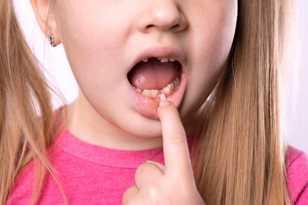 Une fille d'âge préscolaire montre une dent perdue. la dent de lait est tombée et une dent permanente pousse dans la bouche ouverte. concept d'hygiène dentaire.