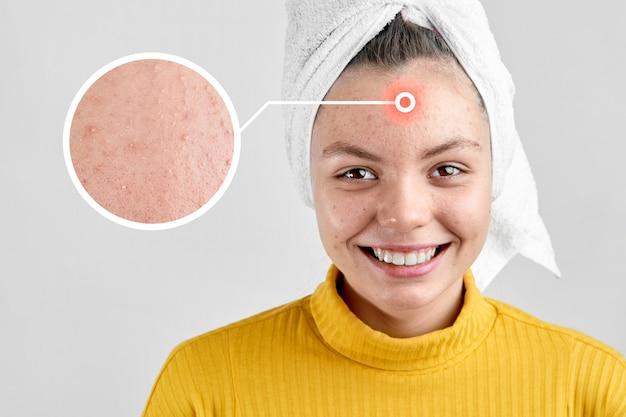 Fille après spa en serviette blanche avec problème d'acné problème de période de la puberté de la peau