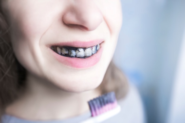 La fille se brosse les dents avec du charbon de bois noir