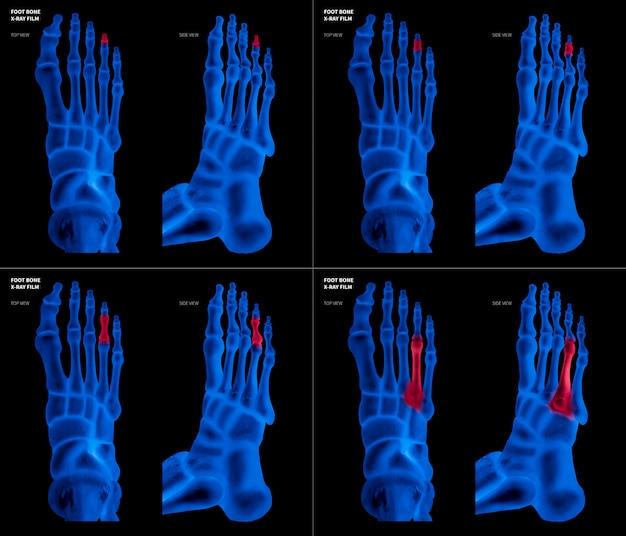 Film bleu aux rayons x de l'os du pied de l'anneau avec des reflets rouges sur la douleur et la zone articulaire